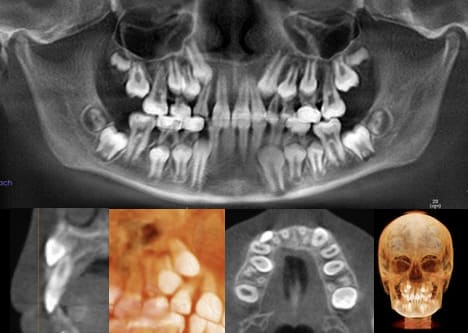 Photo showing change in facial development due to allergies and obstructive mouth breathing