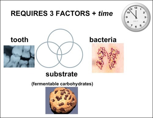 Image 11: Tooth Decay Equation