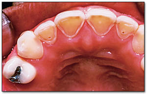 Image 15: Image of erosion of teeth from chronic vomiting