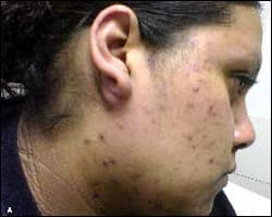 Image: Lesions and scabbing on face
