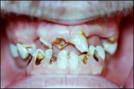 Image: Significant and rampant caries.