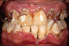 Image: Declining periodontal health