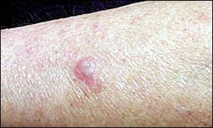 Diagnosed squamous cell carcinoma