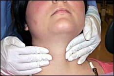 Bimanual palpation of the thyroid gland