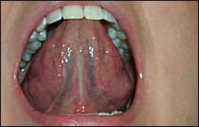 Visually examine the ventral surface of the tongue