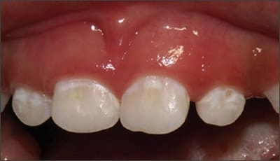 Image: Initial white decalcification of the anterior teeth.
