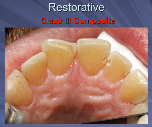 This image depicts a Class III Composite restoration with teeth prepared without anesthesia by Er,Cr:YSGG laser.