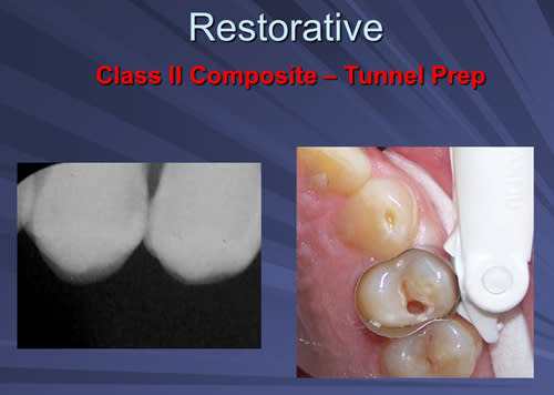 This image depicts a Class II Composite restoration tunnel preparation with Er:YAG laser without local anesthesia.