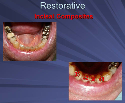 This image depicts incisal composites Diagnodent indicate incisal dentin caries in medication induced xerostomic patient.