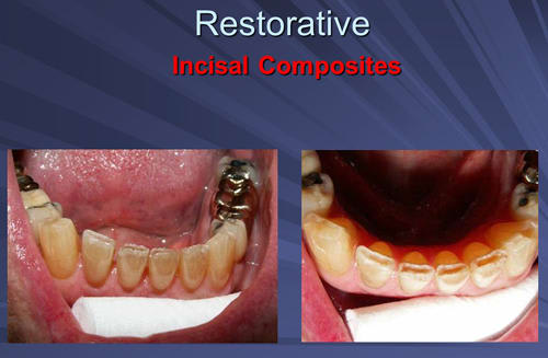 This image depicts incisal composites final preparations done anaesthesia free with Er:YAG laser.