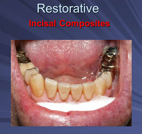 This image depicts incisal composites final restoration.