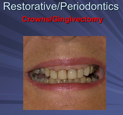 This image depicts pre-operative severe idiopathic gingival hyperplasia.