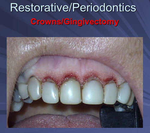 This image depicts immediate post Er,Cr:YSGG gingivectomy and gingivoplasty just prior to crown preparation at the same appointment.