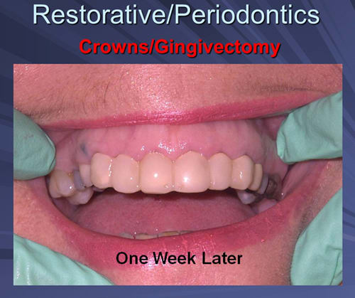 This image depicts teeth that were temporized with a chair-side fabricated six unit splint and the patient returned for impressions one week later.