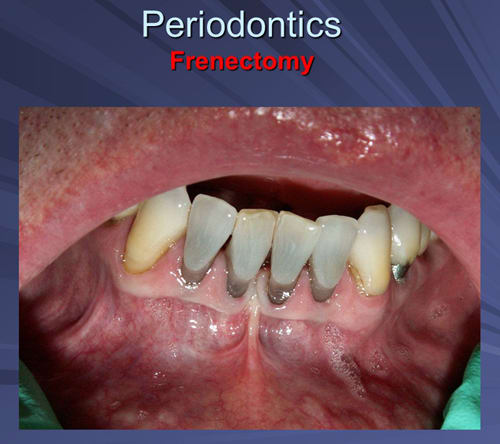 This image depicts frenum contributing to recession between teeth 24 and 25.