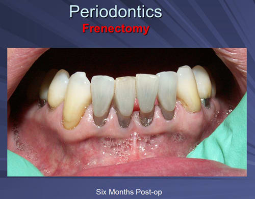 This image depicts six months post-operative view of an Er:YAG frenectomy.