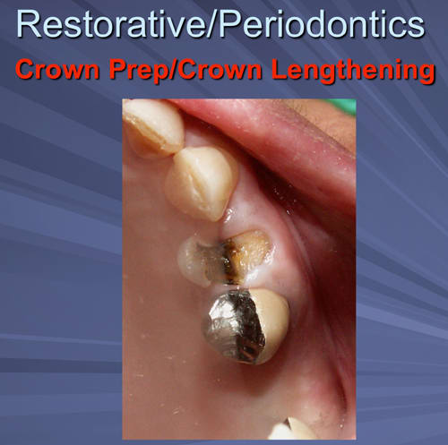 This image depicts fractured buccal cusp on 70-year-old female requires osseous crown lengthening due to biologic width impingement on mesial and buccal.