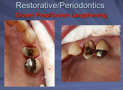This image depicts the hard tissue crown lengthening can be done with a flapless approach if two millimeters or less of bone needs to be removed.