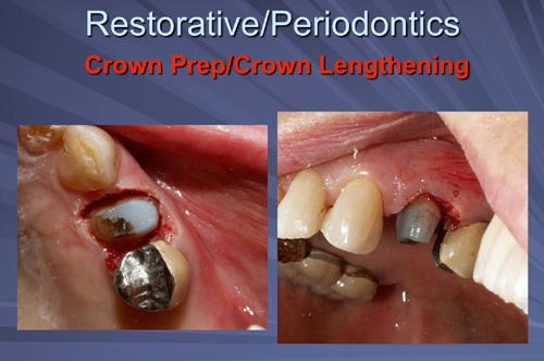 This image depicts the tooth is built up with a high contrast composite material and prepared for the crown on the same appointment as the crown lengthening.