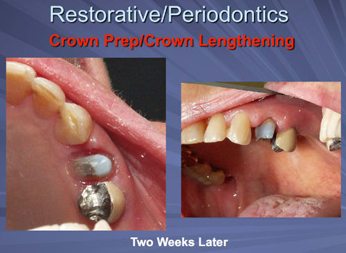 This image depicts the sulcular and attached gingiva are healing well at the crown delivery appointment two weeks after osseous crown lengthening.