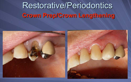 This image depicts the crown is delivered two weeks after the osseous crown lengthening.