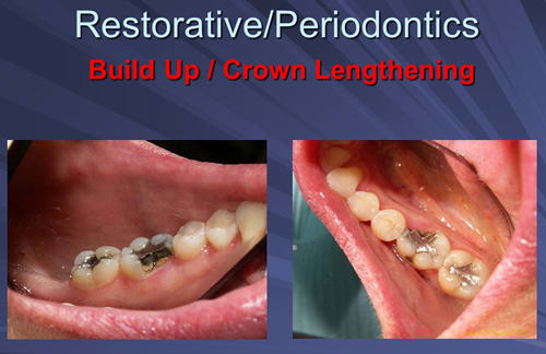 This image depicts Mesiolingual cusp fracture requires osseous crown lengthening.