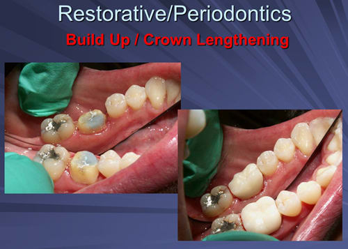 This image depicts the permanent crown is delivered four weeks after the crown lengthening procedure.