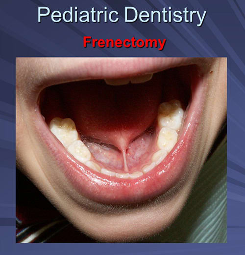 This image depicts a four-year-old male with significant ankyloglossia.
