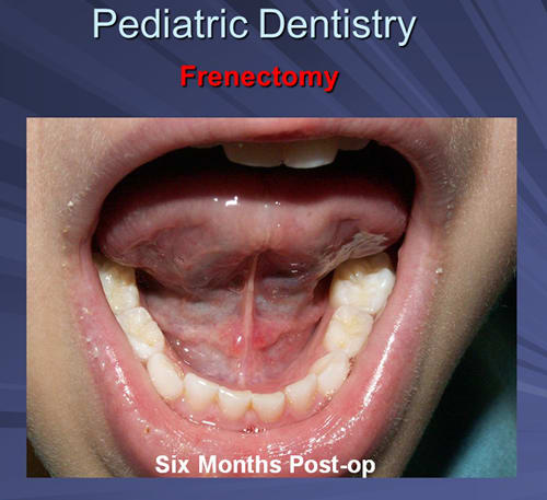This image depicts the four-year-old male six month follow up and no relapse of the ankyloglossia is present.
