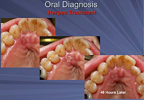 This image depicts a series of three photos showing the healing process over 48 hours of a palatal herpes type I outbreak.