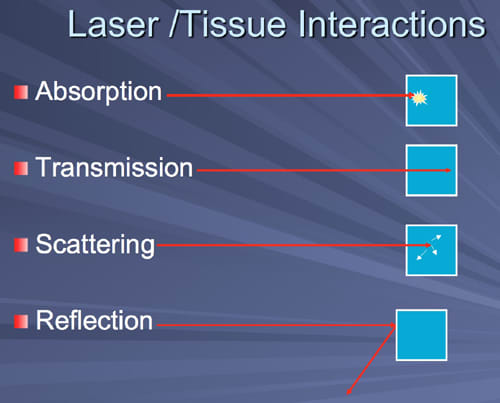 This image depicts the four laser/tissue interactions of Absorption, Transmission, Scattering and Reflection.