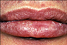 Solar cheilosis presenting as a dry, scaly, unobtrusive chapped lip