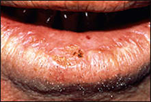 Isolated areas of crusting and loss of definition of the vermilion border - biopsy-proven moderate dysplasia