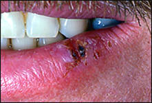 Waxing and waning erythematous ulceration with induration - biopsy-proven carcinoma-in-situ