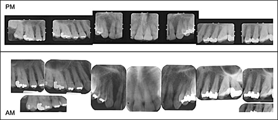 Comparison of Post-mortem (PM) with Ante-mortem (AM) Radiographs.