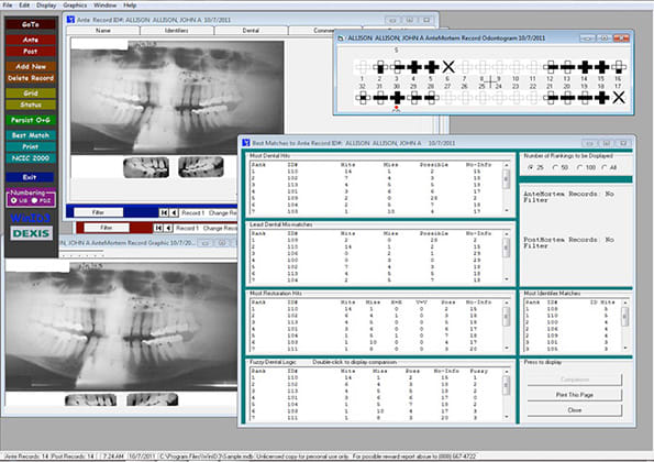 WinID showing best matches and comparison of ante-mortem and post-mortem radiographs.