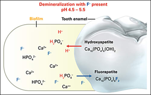 Image: Under cariogenic conditions, carbohydrates are converted to acids by bacteria in the plaque biofilm. When the pH drops below 5.5, the biofilm fluid becomes undersaturated with phosphate ion and enamel dissolves to restore balance. When fluoride (F–) is present, fluorapatite is incorporated into demineralized enamel and subsequent demineralization is inhibited.