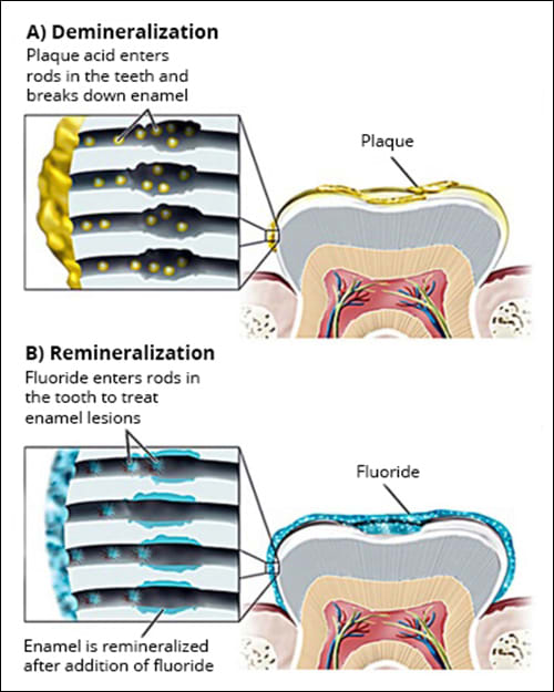 Image: (A) Plaque acids cause a demineralized, sub-surface lesion. (B) Fluoride treatments remineralize the lesion with a more resistant fluorapatite.