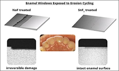 Diagram showing tests of the erosion prevention effects of different fluoride sources.