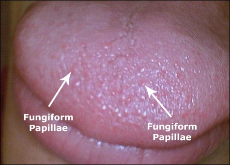Image: Tongue of supertaster, with numerous fungiform papillae.