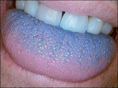 Image: Tongue of a supertaster.