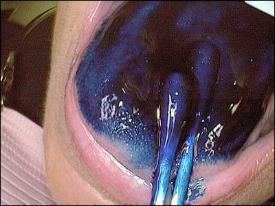 Image: Staining the tongue of a supertaster.