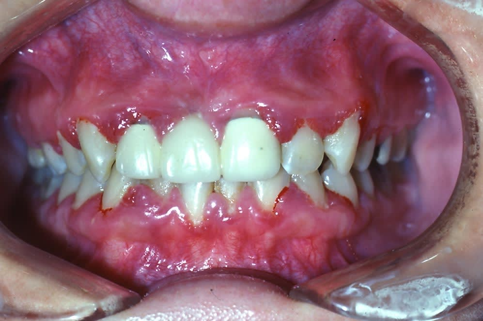 Image: Gums with gingivitis.