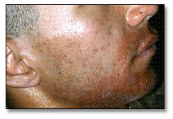 Image: Allergic contact dermatitis characterized by rash, redness, and itching, which began about 24 hours after dental treatment under a rubber dam.