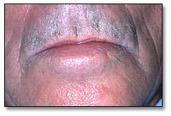 Image: Angioedema characterized by localized, well-circumscribed, non-pitted swelling affecting the lips.