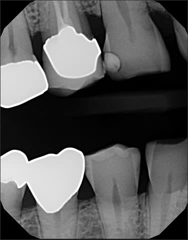 radiograph showing thin enamel and bone resportion