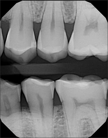 radiograph showing widening of the periodontal ligament