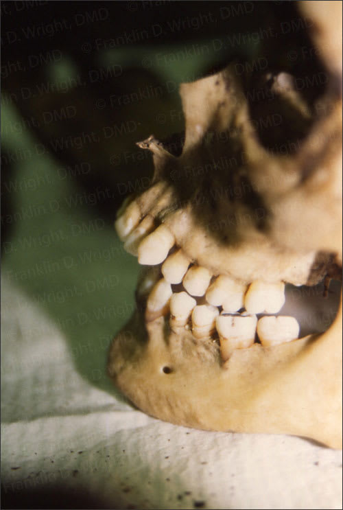 Photo showing rticulated mandible and skull showing anterior open bite