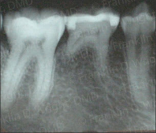 Ante-mortem radiograph used for postive identification.