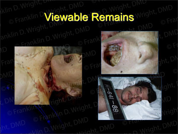 Images showing viewable remains.